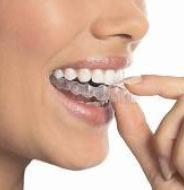unsichtbare-zahnspange